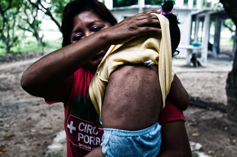 Another Capoacan neighbour shows the effects on the skin of her son.