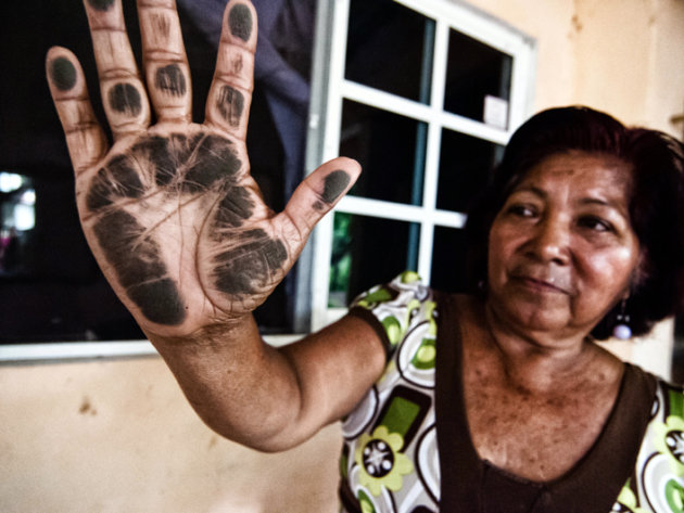 Elena Riquer shows her hand blackened after passing it over her home\'s window.