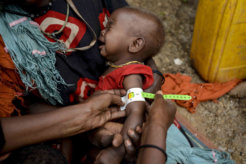 Somalia_hungercrisis_UN