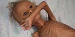 Yemen_Hunger crisis